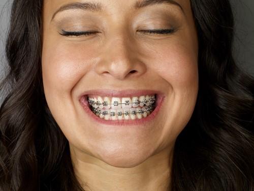 Beugels orthodontie amsterdam - Kleuren die zich vermengen met de blauwe ...